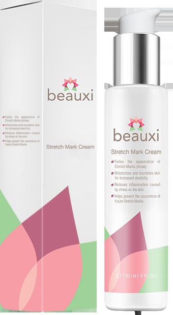 Top 5 Stretch Mark Cream Reviews